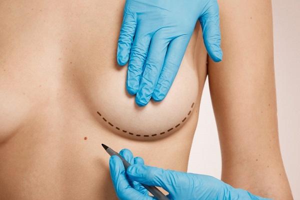 индустрия красоты, пластическая хирургия, эстетическая медицина