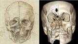 Череп. Фотографии предоставлены Королевской коллекцией и рентгенологом Ричардом Веллингсом, UCHW