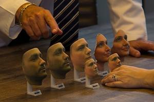 3D-печать позволяет узнать результат пластической операции до ее проведения