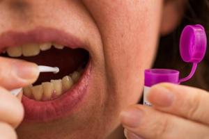 Наборы для установки зубных пломб на дому опасны для здоровья